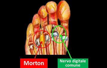 Malattia di Morton radiofrequenza pulsata